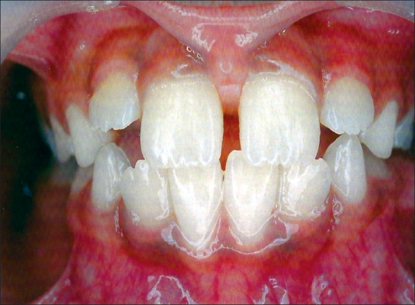 Pre-operative photograph showing high frenal attachment with midline diastema