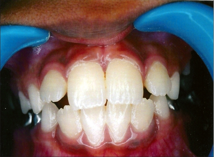 Post-operative photograph showing closure of midline