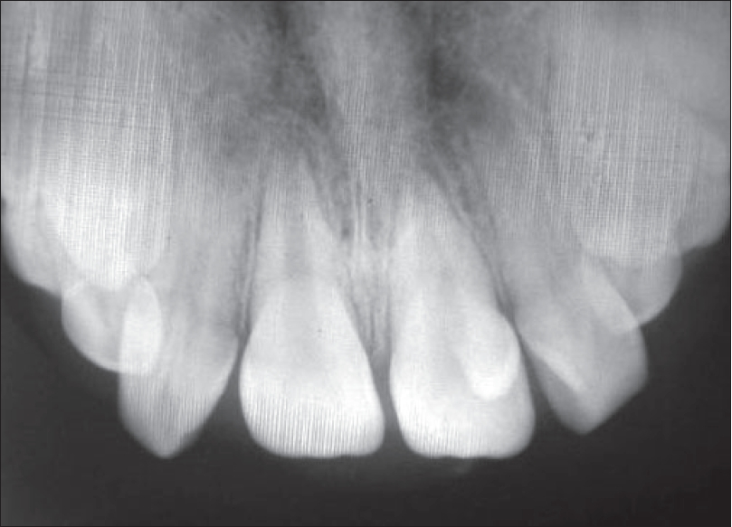 Radiograph of three talon cusps on the palatal