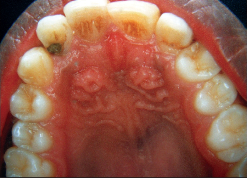 A palatal swelling seen clinically