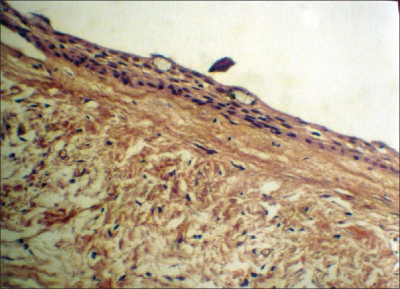 Digital photomicrograph showing epithelial lining,