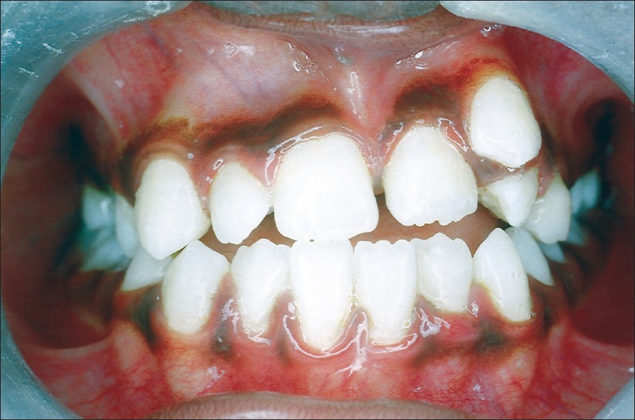 Figure 5: Postoperative photograph of occlusion showing