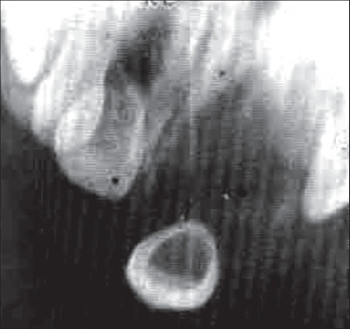 Figure 2: Osteolytic lesion with ill defined borders in the region of maxillary left primary central incisor with developing tooth being displaced from its normal site and appeared to be floating within the lesion.