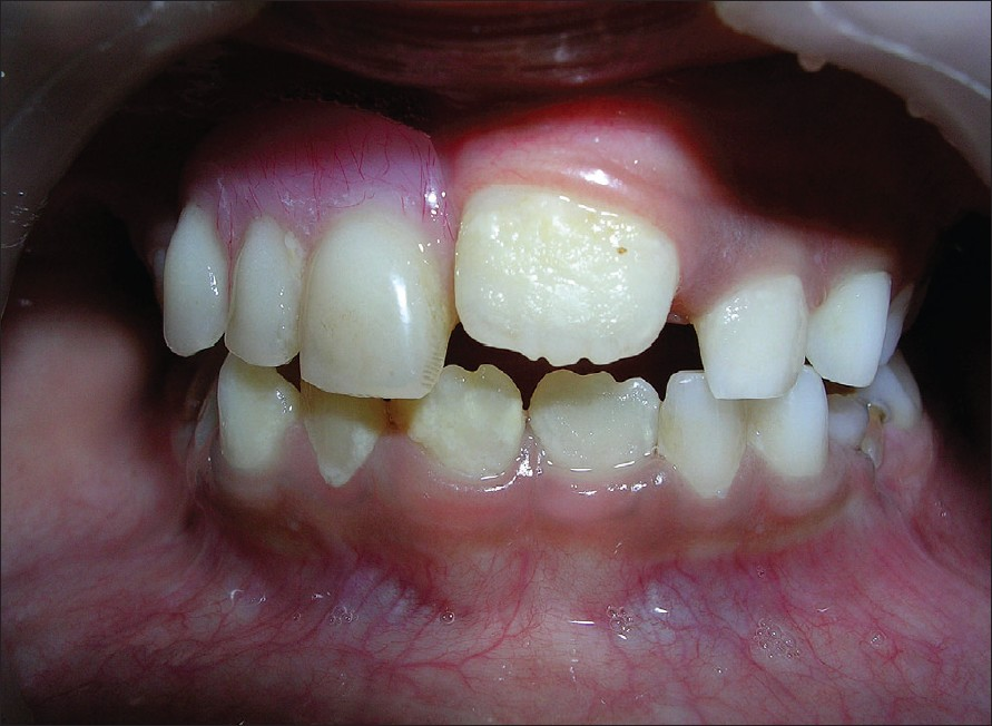 Figure 7: Photograph showing removable partial denture in place and the erupting 21