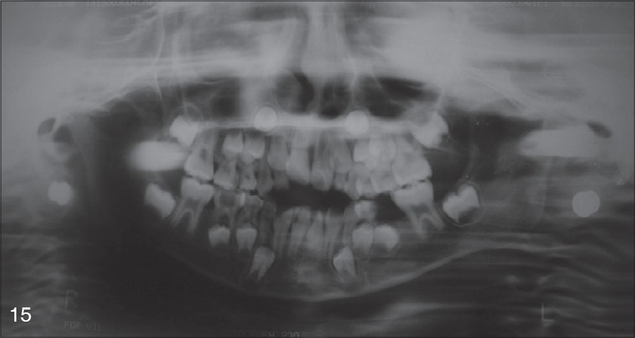 Figure 15: Post-treatment radiographs showing complete regression in the size of the swelling