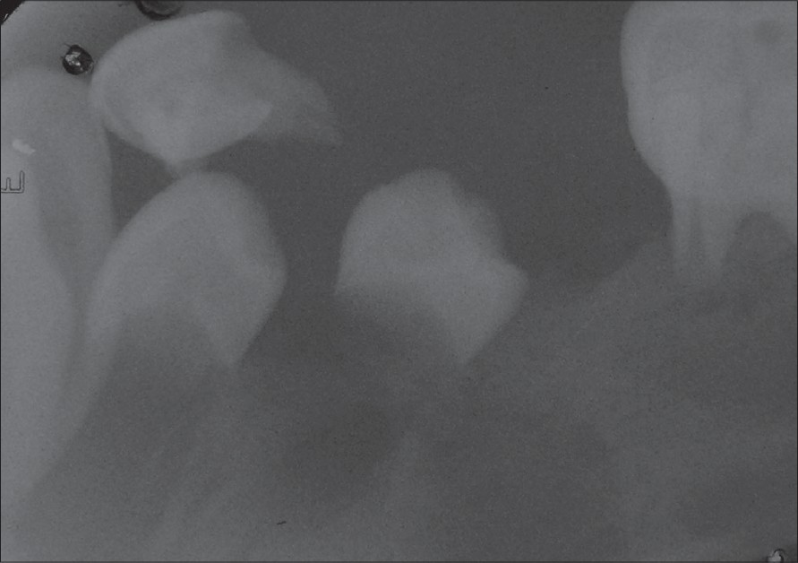 Figure 4: Intraoral periapical radiograph showing complete loss of lamina dura in relation to 75 and 36