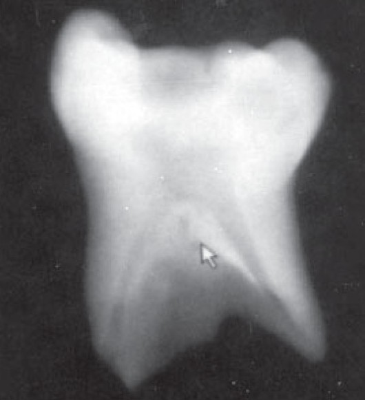 Figure 1: An accessory canal in the furcation area of the mandibular second primary molar as seen with digital radiography