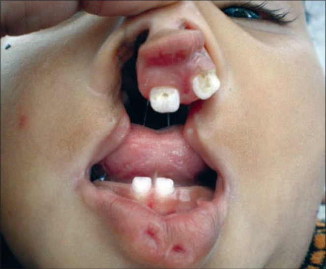 Figure 1: Bilateral cleft of lip and palate in association with van der Woude syndrome
