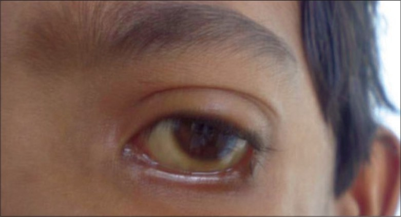 Figure 5: Coloboma of eyelid: Treacher Collins syndrome