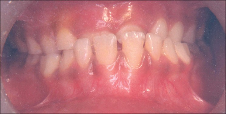Figure 2: Preoperative photograph showing severe attrition of maxillary teeth