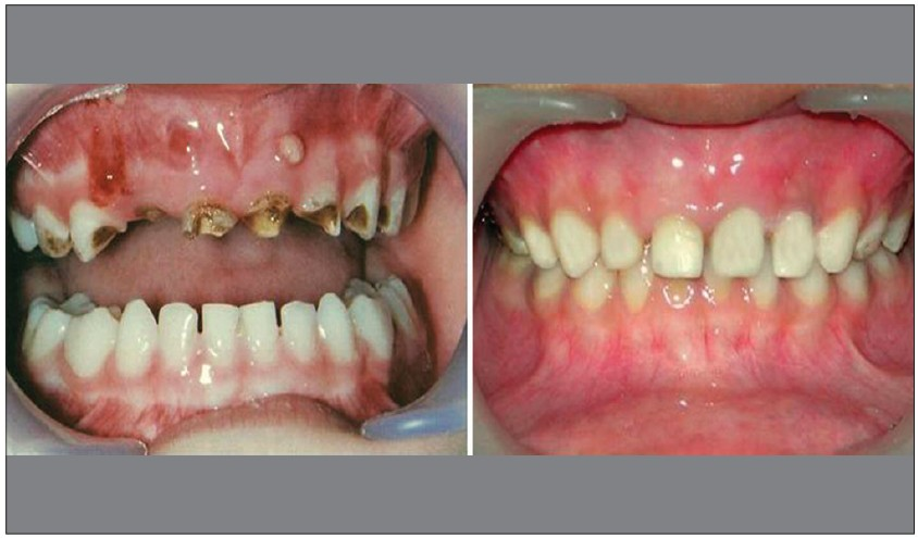 Figure 15 :Pretreatment and post-treatment photographs of another case