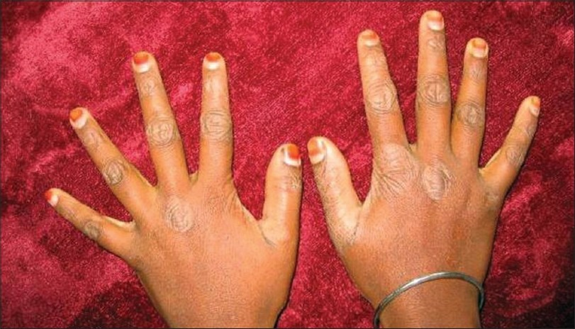 Figure 1 :Photograph showing dermatological lesions of the hands