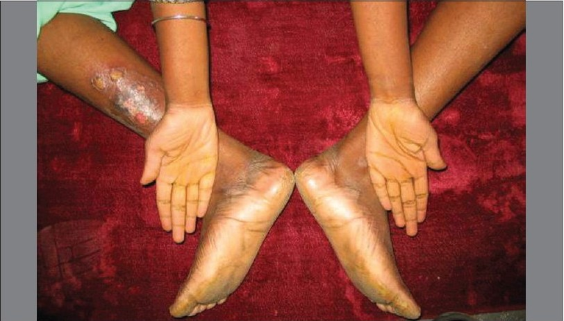 Figure 2 :Photograph showing dermatological lesions of the palms and soles