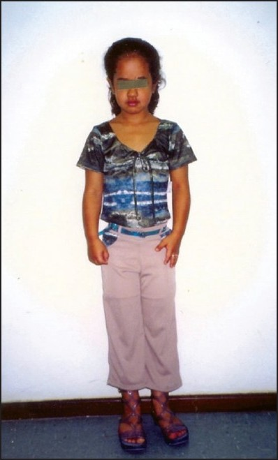 Figure 1: A 7-year-old girl with pyknodysostosis - short stature and desproportional size of the skull