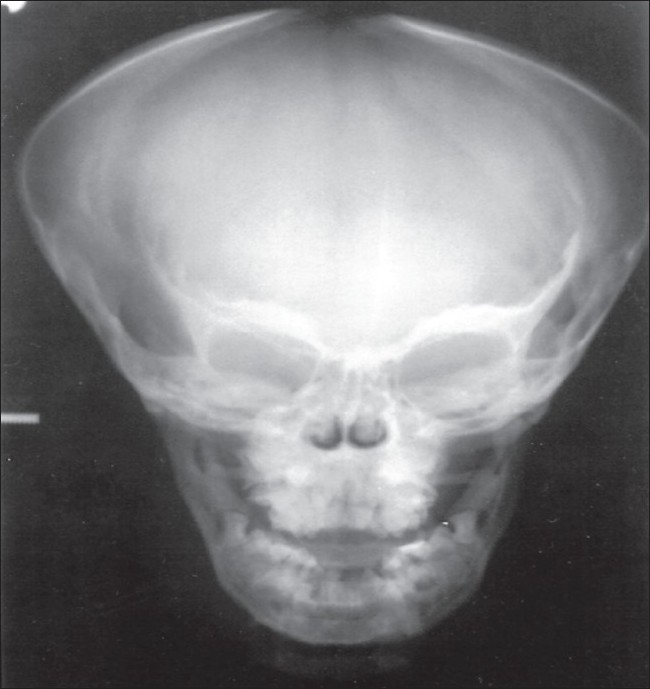 Figure 6: Postero-anterior frontal radiograph showing opened skull fontanelles