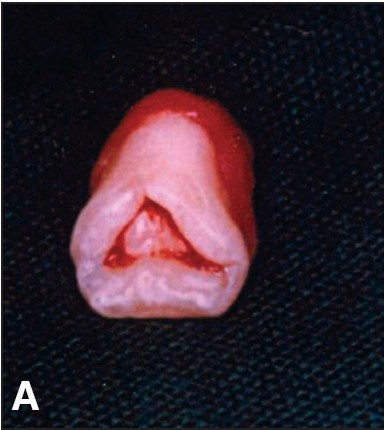 Figure 5: (A) Gross appearance of the supernumerary tooth depicting a triangular occlusal morphology and two deep pits on the labial aspect.