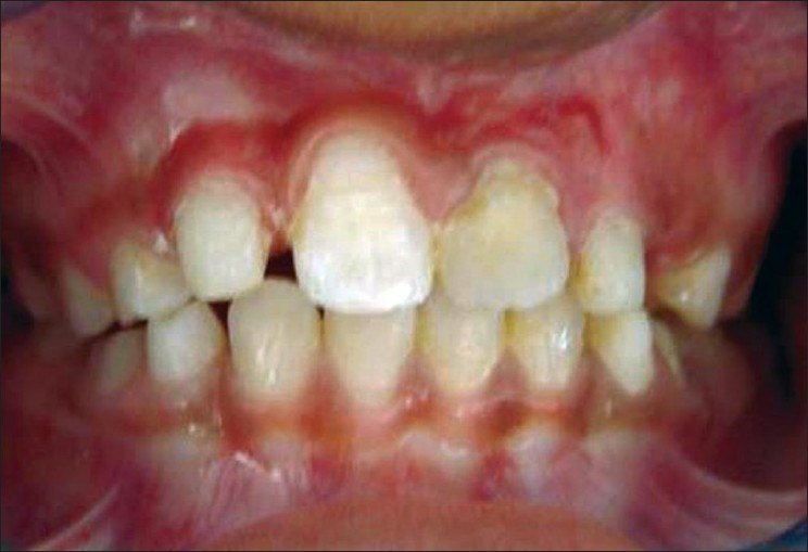 Figure 4: Palatal contouring and esthetic restoration by composite