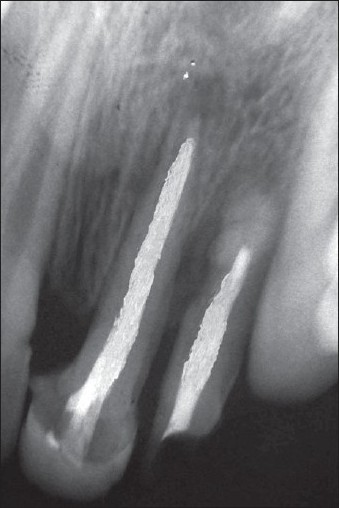 Figure 9: Follow up radiograph showing bone healing 3 month after treatment