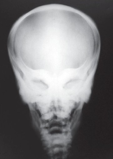 "Figure 9: Sclerotic orbital wall gives a ""space alien"" / mask like appearance"