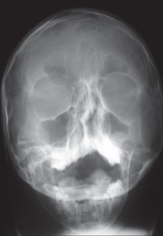 Figure 5 :Water's view x-ray revealing deformity of the right orbit and deviated nasal septum toward the right
