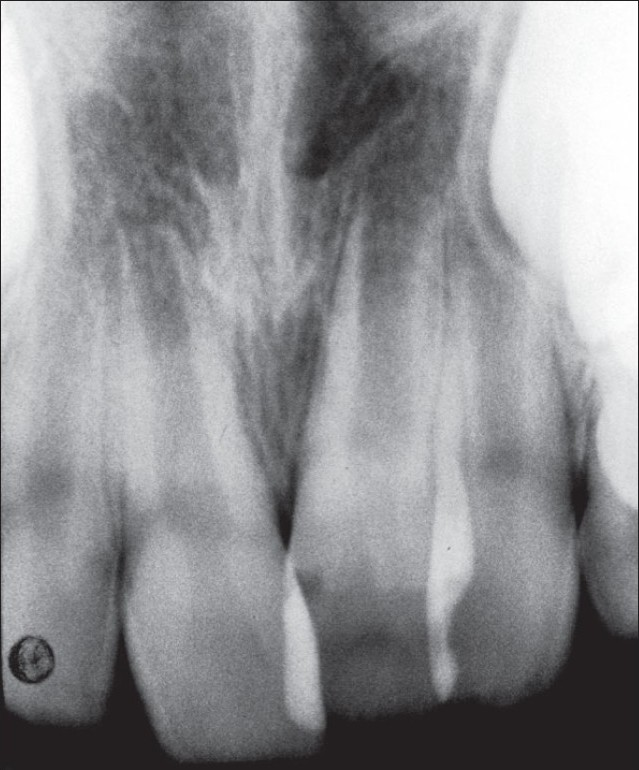 Figure 2 :Radiographic control after partial eruption