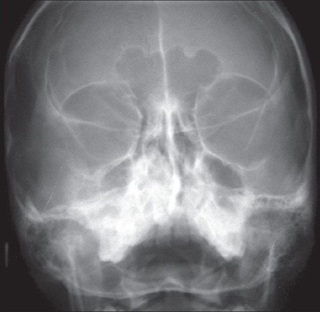 Figure 4 :PNS skull view of the lesion