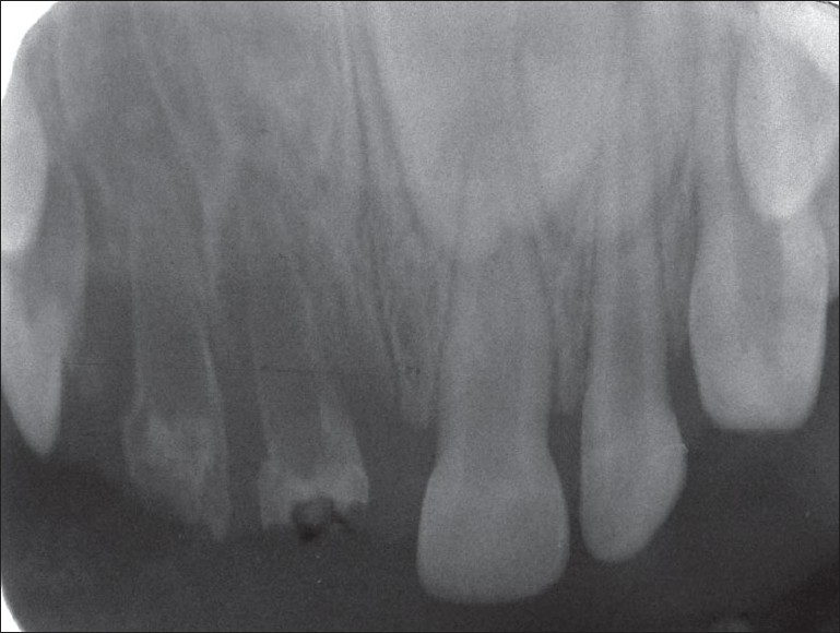 Figure 2 :Radiographic aspect suggesting ghost-like characteristic of RO teeth and the presence of wide pulp chambers associated with roots containing narrow dentinal walls