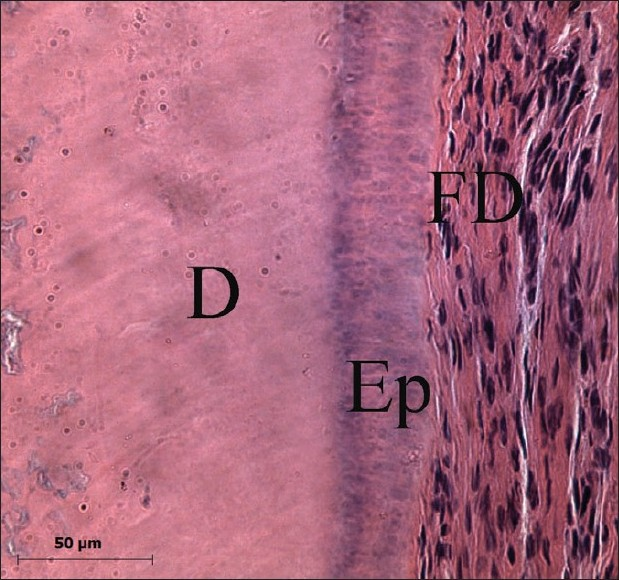 Figure 6 :Portion of radicular dentin (D) covered by epithelial cells (Ep), residues of Hertwig sheath associated with connective fibrous tissue, dental follicle (FD). (H&E, 400×)