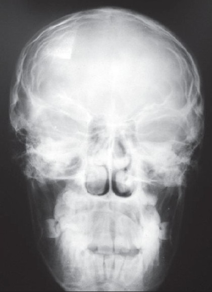 Figure 6 :Skull X-ray of the patient's sibling