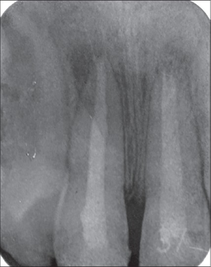 Figure 4: Periapical radiograph showing completed root canal treatment