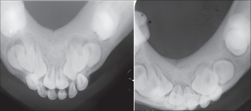 Figure 3: Occlusal radiograph revealing characteristic ground-glass appearance