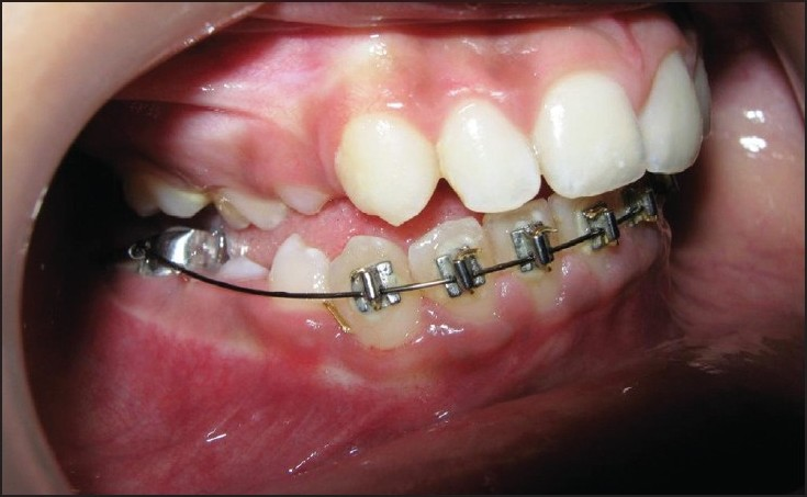 Figure 11: Intraoral photograph showing erupted permanent canine after minor orthodontic traction (15 months postoperative)