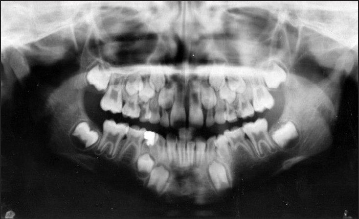 Figure 5: Panoramic view showing successive eruption of mandibular left 1st premolar with complete ossification of the bony defect (15 months postoperative)
