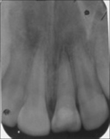 Figure 4 :IOPAR after Ca(OH)2 placement