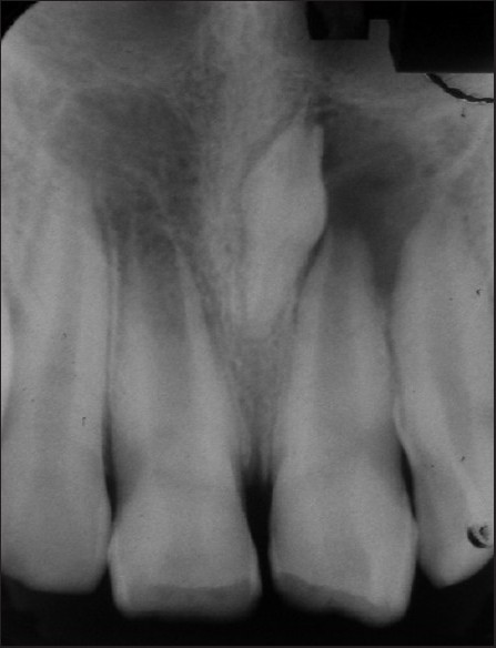 Figure 5: Intraoral periapical radiograph showing inverted mesiodens