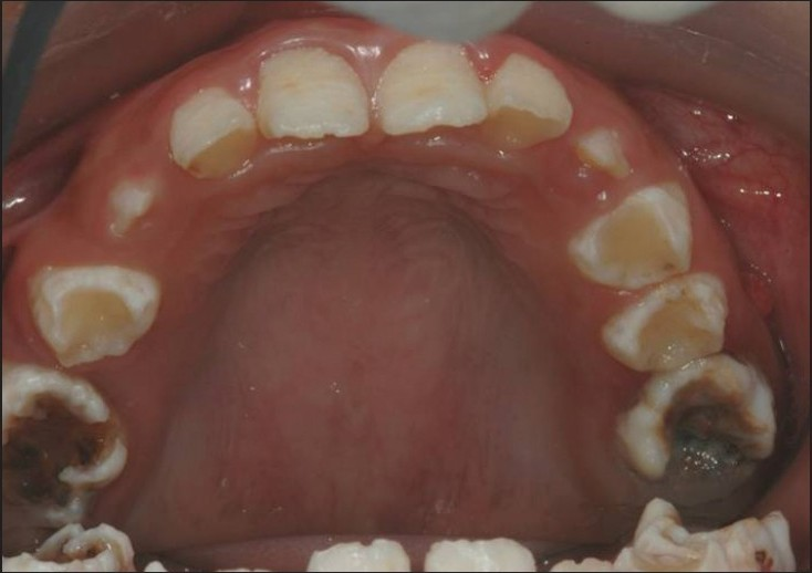 figure 2 occlusal view of the maxillary teeth with amelogenesis imperfecta