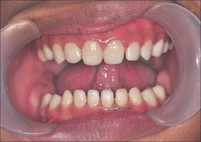 figure 9 general appearance of the rehabilitated dentitions using composite