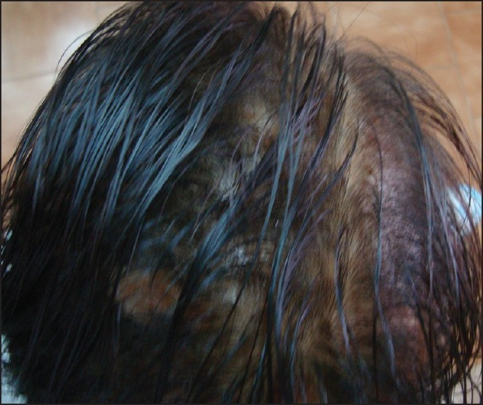 Figure 4: Diffuse alopecia with scarring on the scalp