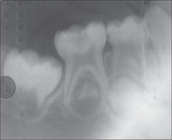 Figure 2: Pre– operative radiograph of mandibular primary left second deciduous molar considered for root canal treatment with metapex