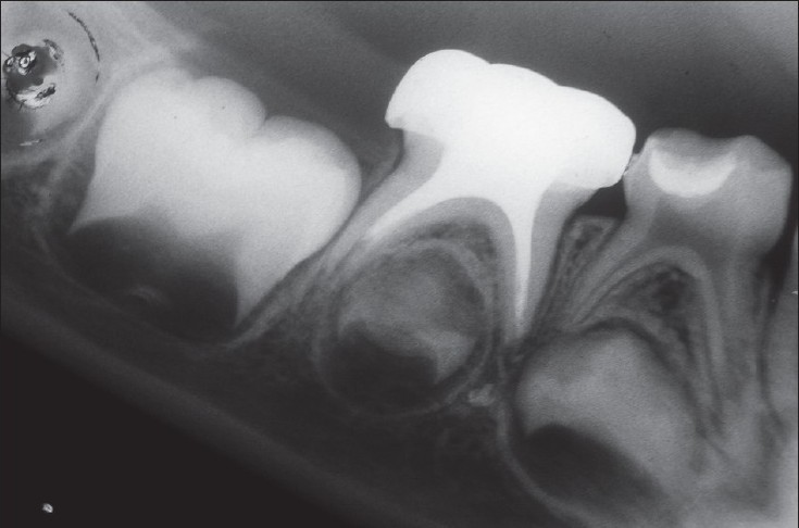 Figure 6: Radiograph of the same tooth taken 6 months postoperatively after root canal filling done with zinc oxide eugenol.