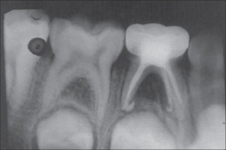 Figure 10: Radiograph of the same tooth taken 6 months postoperatively showing no resorption of the extruded filling material