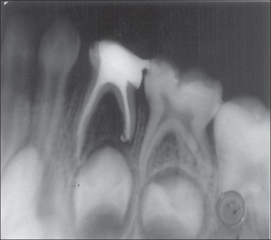 Figure 11: Radiograph of a mandibular first deciduous molar taken immediately postoperatively showing significant amounts of extruded metapex