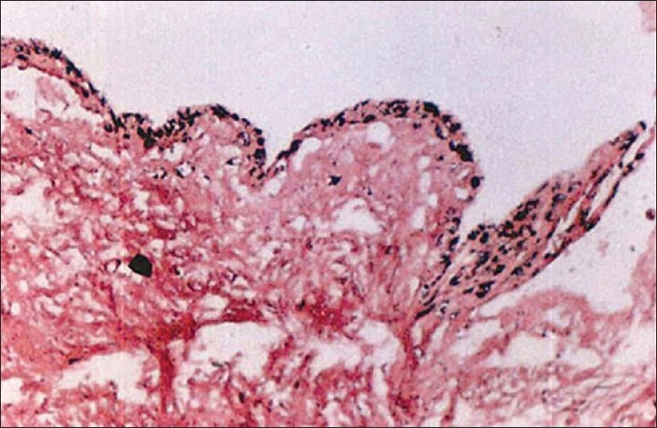 Figure 6: Histopathological picture of the lesion