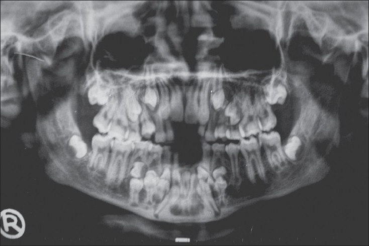 Figure 5: Impacted maxillary and mandibular anterior teeth with multiple impacted supernumerary teeth in lower anterior and premolar regions.