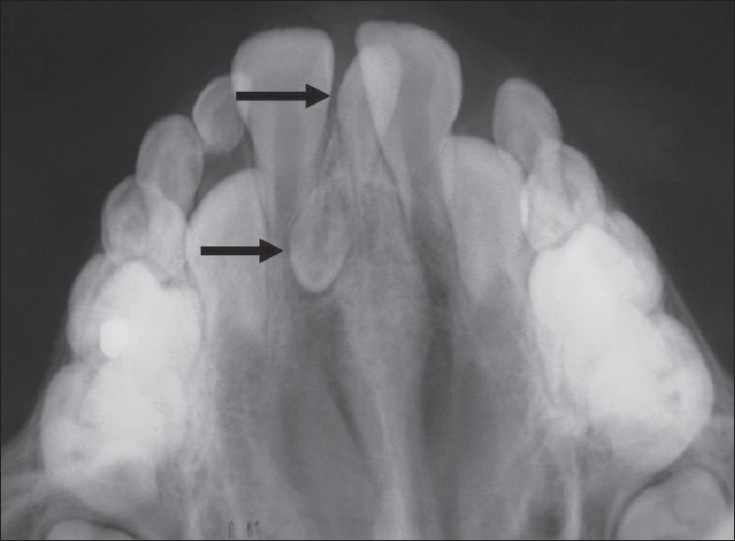 Figure 1: Anterior maxillary occlusal radiograph showing two mesiodentes