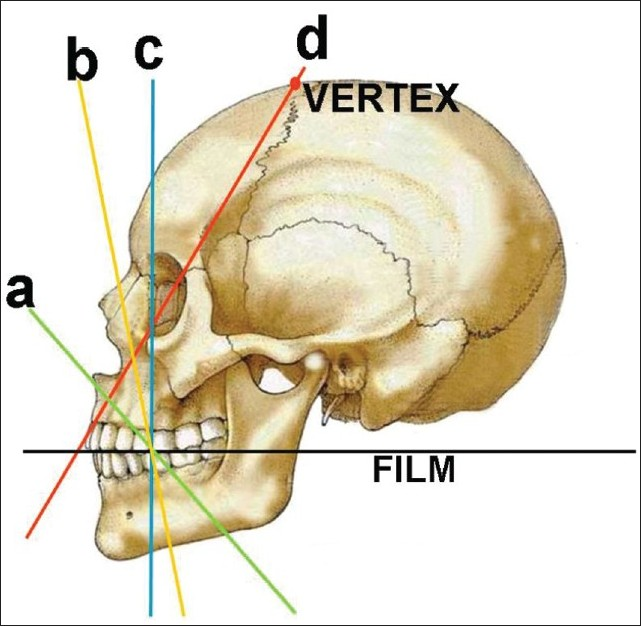 Figure 3: (a) Anterior maxillary occlusal projection, (b) Cross-sectional maxillary occlusal projection, (c) True maxillary occlusal projection, (d) Vertex occlusal projection