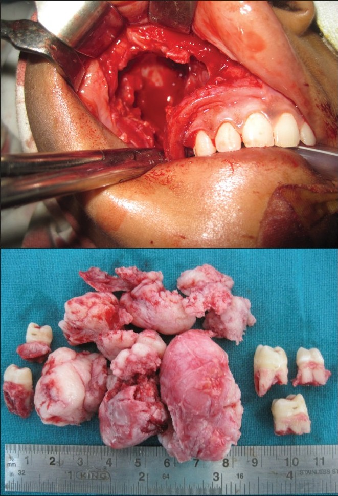Figure 4: (a)Intraoperative picture showing enucleation site
