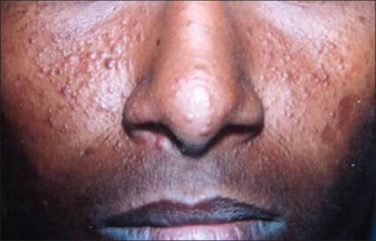 Figure 1: Clinical photograph revealing multiple papules on the nose and malar region exhibiting a butterfly fashion