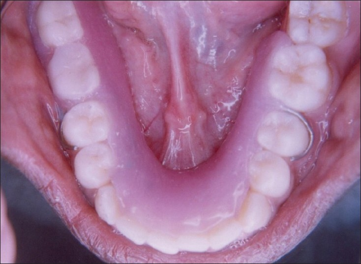 Canker sore floor of mouth the image for Floor of mouth cancer