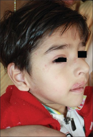 Figure 1: Hemangioma of upper lip and eyelid and patient consent